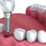 Implantes dentales, tipos y precios
