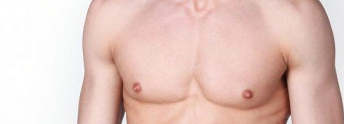 ¿Cuál es el precio de la cirugía de ginecomastia?